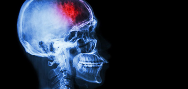NeuroKinetics_Concussion_Post_Concussion_Syndrome