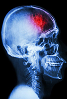 NeuroKinetics Concussion